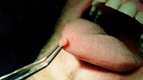 Папиллома во рту у ребенка
