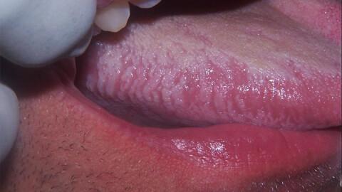 вич инфекция ротовой полсоти